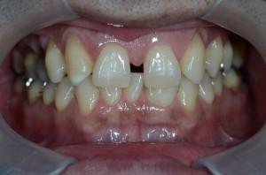 すきっ歯をコンビネーション治療で治す前
