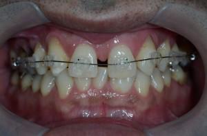 すきっ歯をコンビネーション治療で治す途中