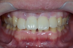 すきっ歯を治した後