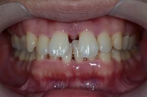 すきっ歯を治す前
