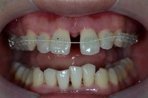 すきっ歯を治してる途中