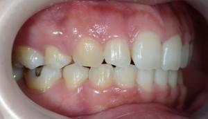 治療をして口元が引っ込んだ状態の口元の歯並び