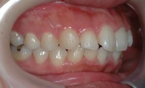 治療前の口元が出ている状態の歯並び