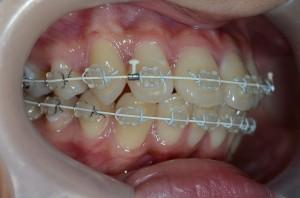 出っ歯の矯正治療中