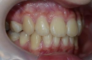 出っ歯の矯正治療後