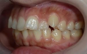 ガタガタの歯並びの矯正前