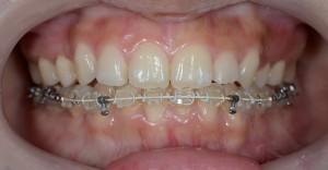 ガタガタの歯並びを矯正治療して1年経過