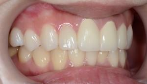 歯のガタガタをセラミックを用いた審美歯科できれいにした方