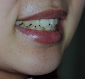 前歯のガタガタをきれいにしたい方の治療前