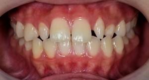 歯の形がおかしい1