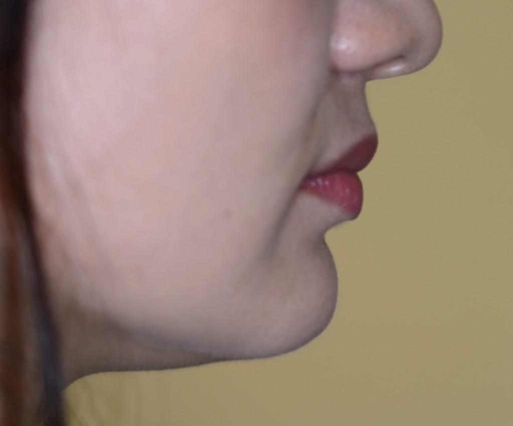 出っ歯の矯正