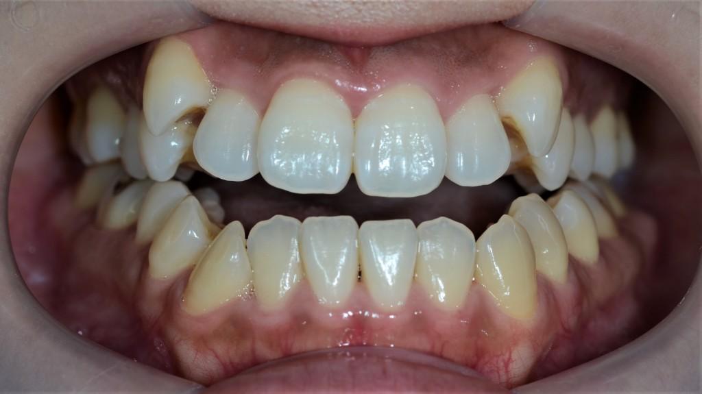 開口の矯正治療例