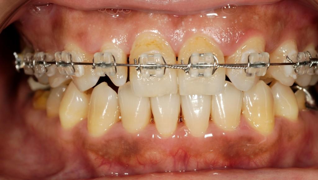 変な歯の形をセラミックで綺麗にする審美歯科