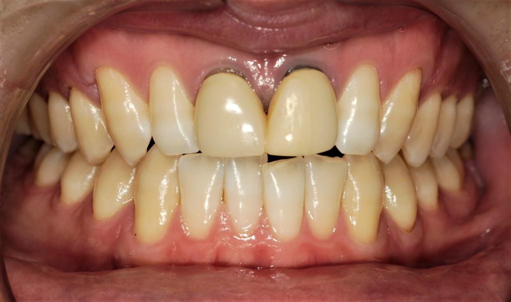 気になるさし歯をきれいにするセラミック(審美歯科)