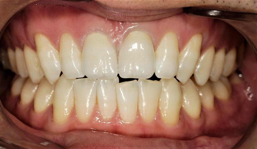 気になるさし歯をきれいにする審美歯科