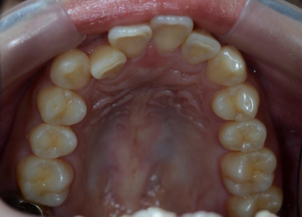 ガタガタの歯並びの方の矯正治療