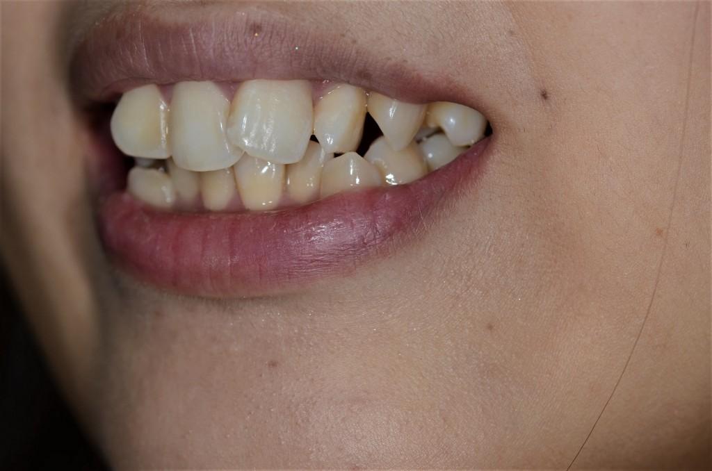 ガタガタの歯並び(叢生)の笑顔