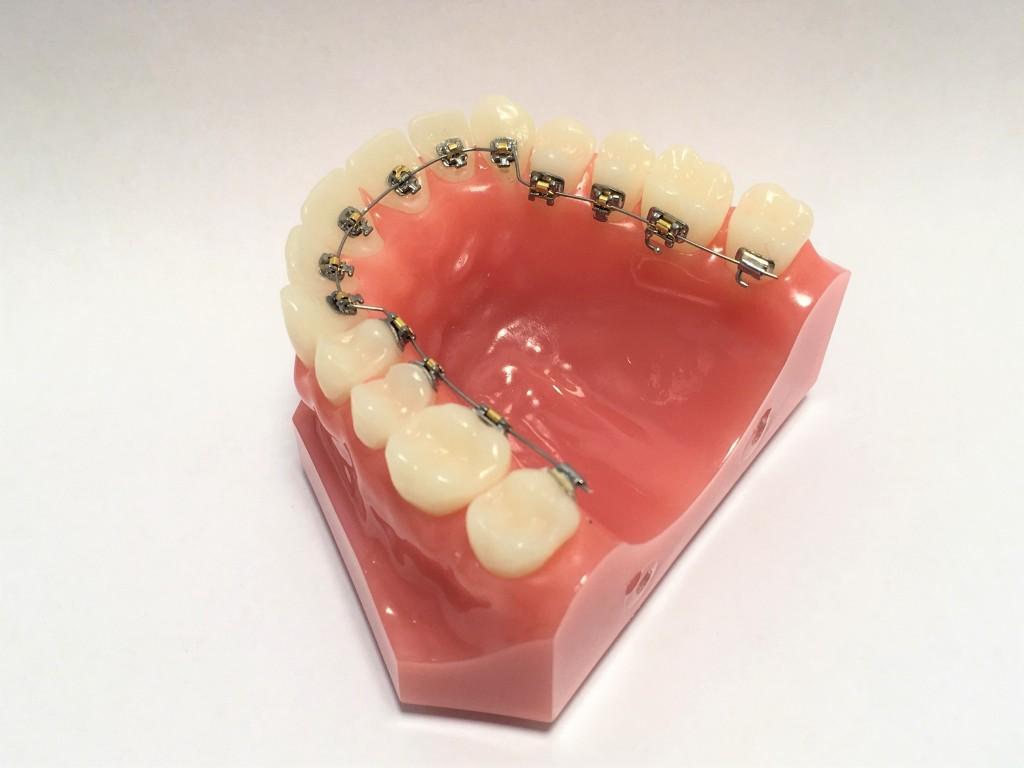 上の歯のリンガル