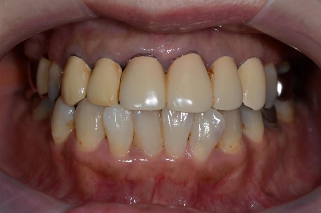 古いさし歯をきれいにするセラミック(審美歯科)