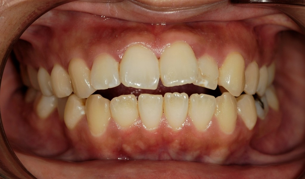 開口の矯正治療