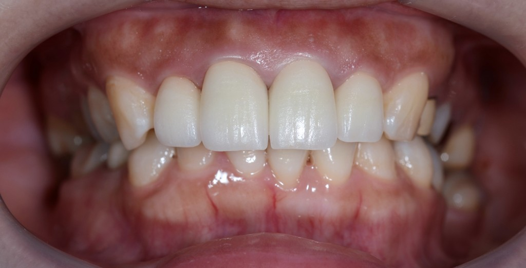 古いさし歯をきれいにする審美歯科