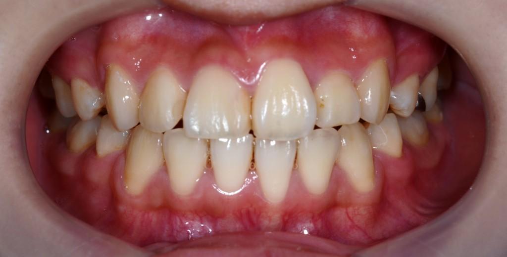 ガタガタの歯並びの矯正治療