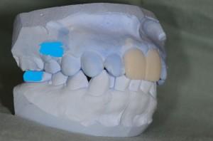 審美歯科(セラミック矯正)のシミュレーション