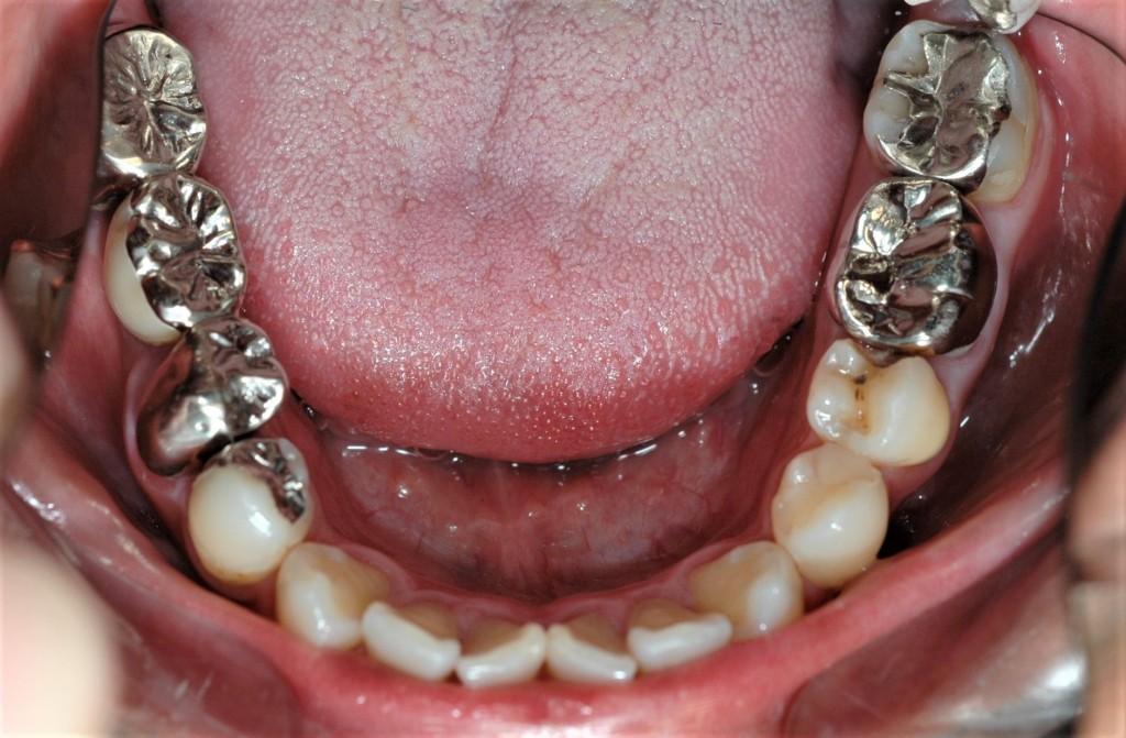 白い奥歯にする審美歯科