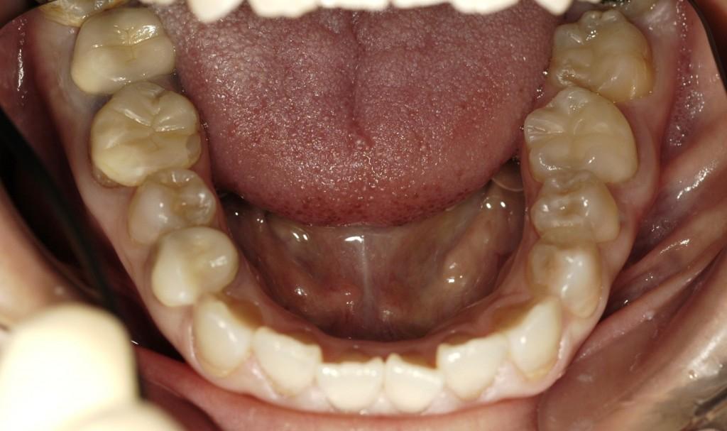 奥歯を白い歯にする審美歯科