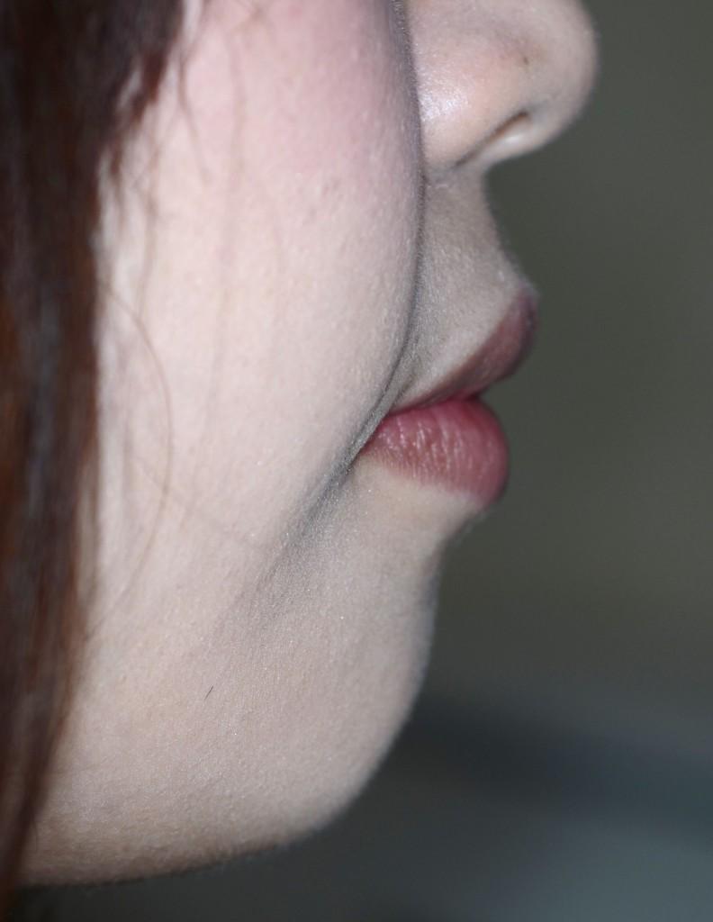 口元が出ている方の矯正治療