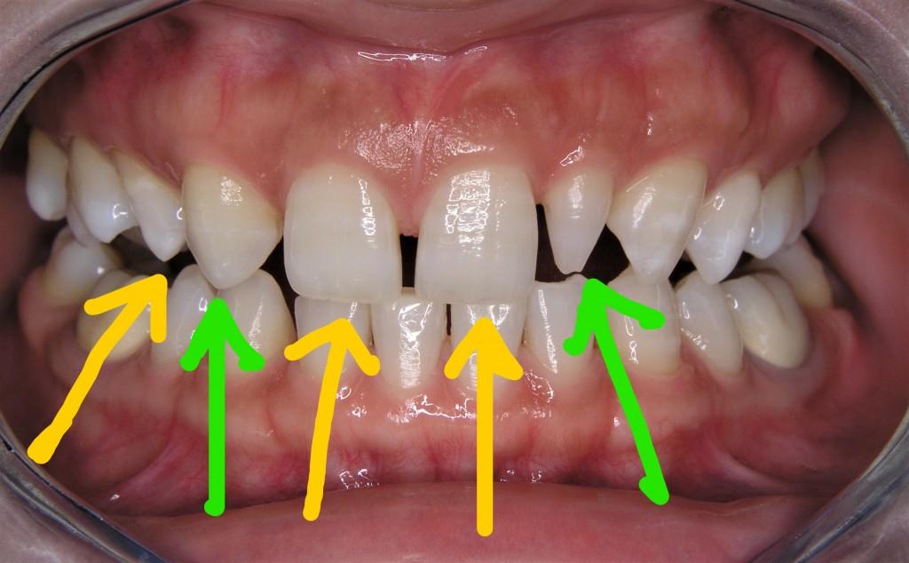 歯の形がおかしいのをセラミックで治す