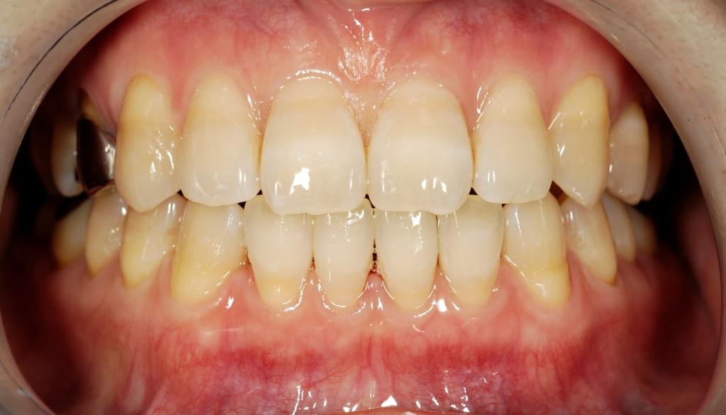 前歯の隙間の矯正