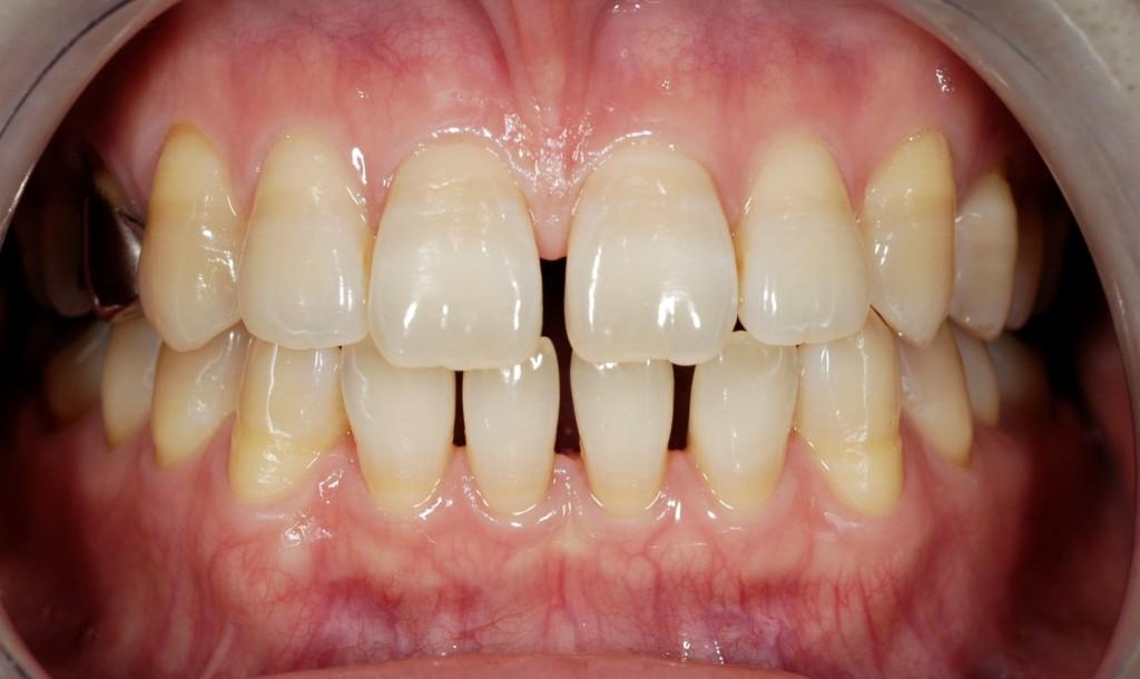 前歯の隙間の矯正治療