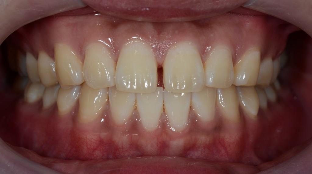 前歯の隙間の治療