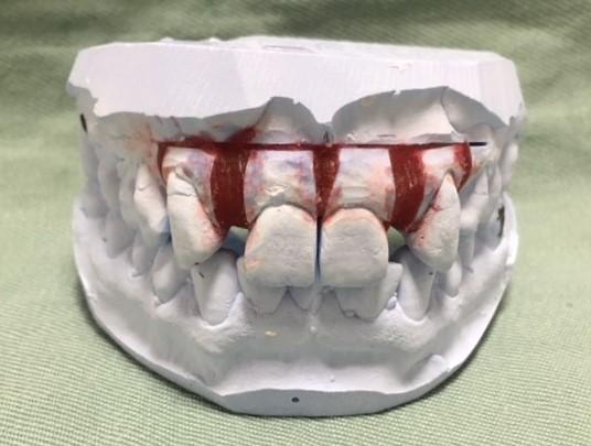 セラミック矯正で、最初のステップである術前矯正が終わった状態の模型