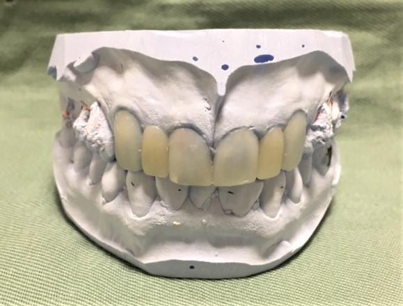 セラミック矯正で、最終ステップのセラミックにより綺麗な歯並びに治した状態の模型